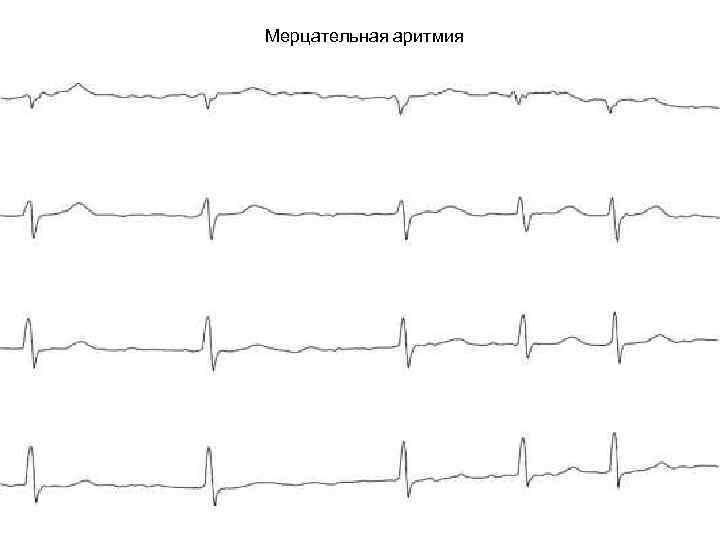 Основные причины появления, симптомы и лечение мерцательной аритмии сердца