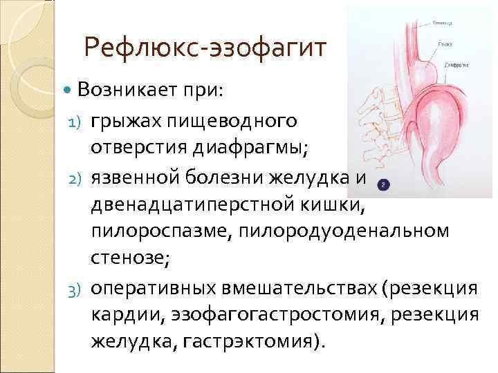 Что такое рефлюкс-эзофагит, методы диагностики и лечения - симптомы, диагностика, лечение, профилактика