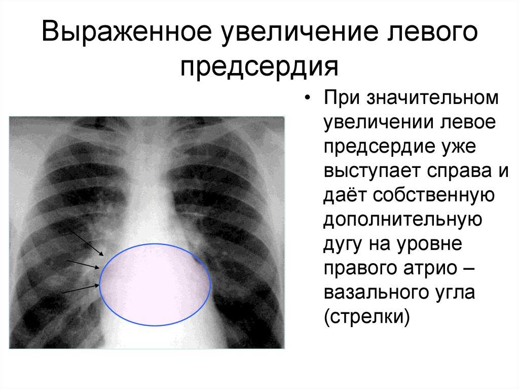 Дилатация левого предсердия что это такое и как лечить — заболевания сердца