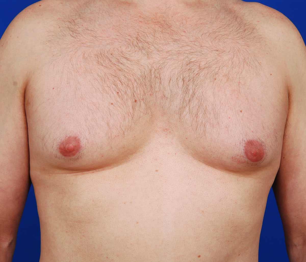 Что такое гинекомастия? почему она возникает? как проявляется?