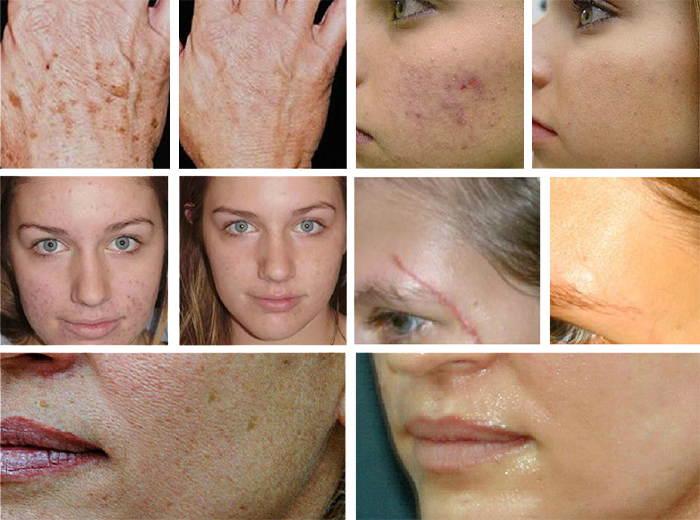 Поверхностный пилинг лица (химический, аппаратный, механический): что это такое, виды, отзывы, фото до и после