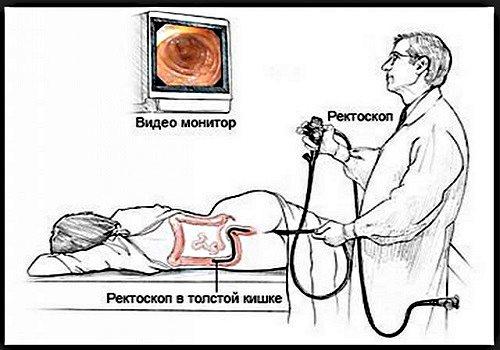 Фиброколоноскопия кишечника: когда назначают, подготовка к процедуре