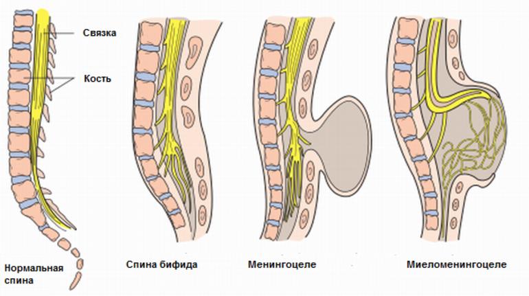 Спина бифида у детей: диагностика и хирургическое лечение
