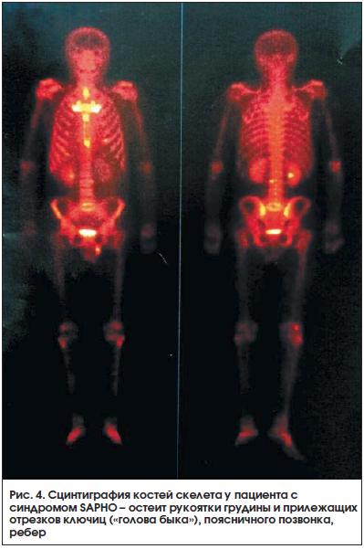 Сцинтиграфия костей скелета: что это такое. подготовка к обследованию, как проводится, что показывает, расшифровка результатов, последствия. адреса и цены в москве, спб