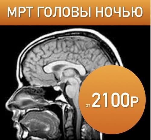 Компьютерная томография головного мозга: что определяет и показывает обследование головы
