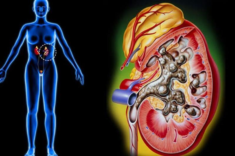 Единичные микролиты в почках что это значит - о здоровье