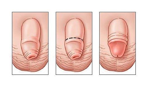 Смегма у мужчин: зачем нужна смазка под крайней плотью | parnas42.ru