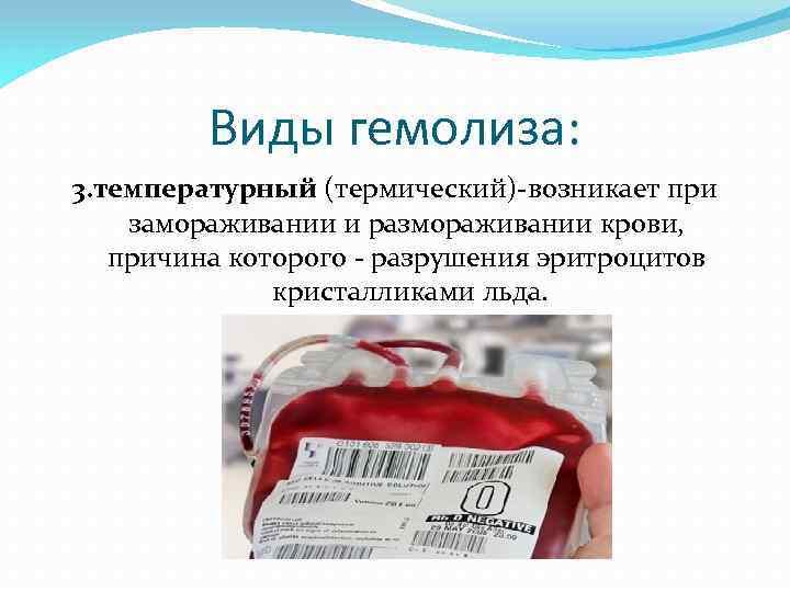Причины гемолиза эритроцитов при сдаче анализов крови