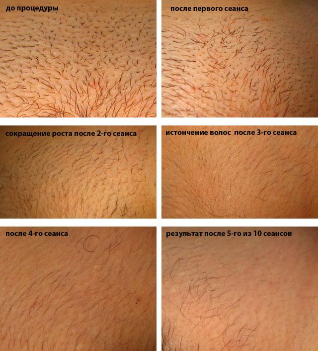 Что такое элос-эпиляция: стоит ли удалять волосы данным методом?