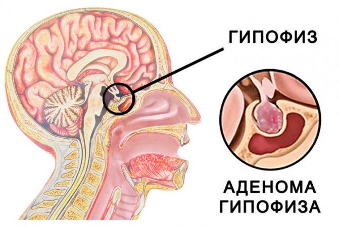 Что такое аденома гипофиза - симптомы у мужчин и женщин