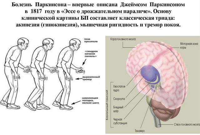 Основные отличия между паркинсонизмом и болезнью паркинсона
