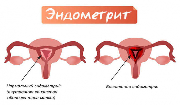 Хронический метроэндометрит: симптомы и лечение