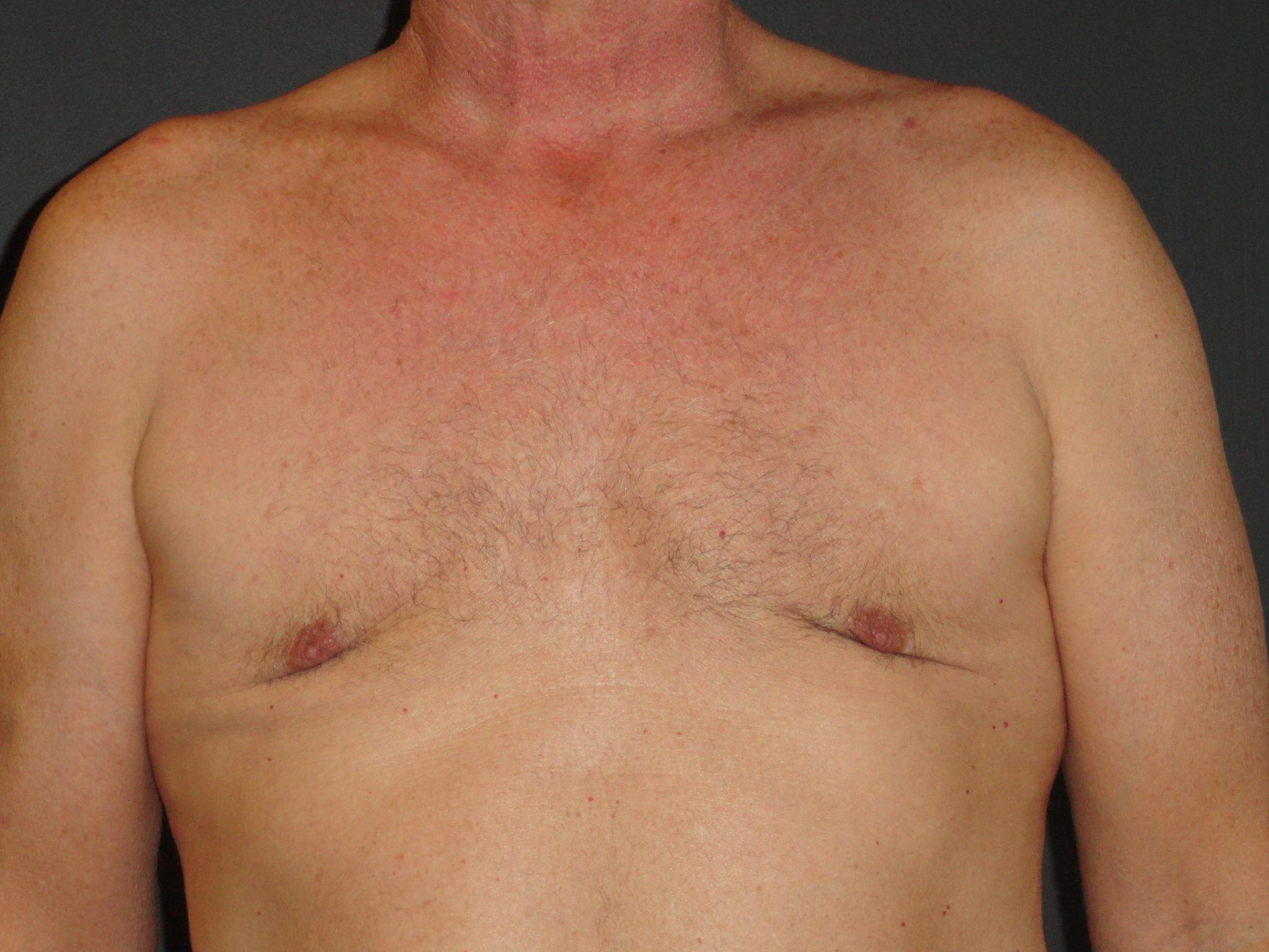 Гинекомастия у мужчин: что это, код по мкб 10, причины и последствия, симптомы, фото, диагностика, к какому врачу обратиться   романов георгий никитич