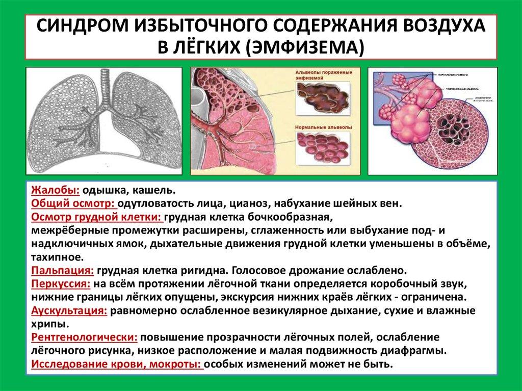 Как лечить буллы в легких
