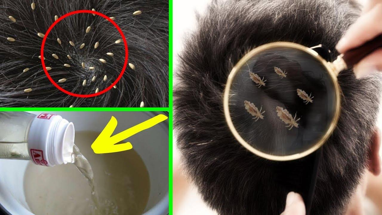 ❶ как выглядят гниды у человека на голове - фото и способы избавления