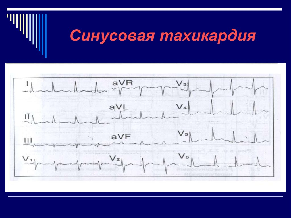 Синусовая тахикардия сердца - что это такое, симптомы и лечение