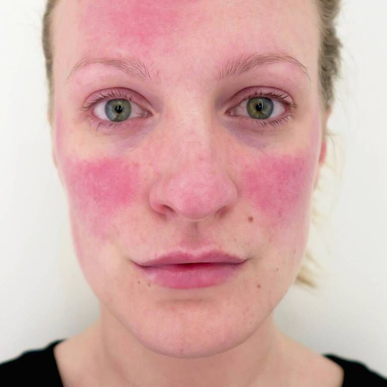 Розацеа лица. схема лечения розацеа