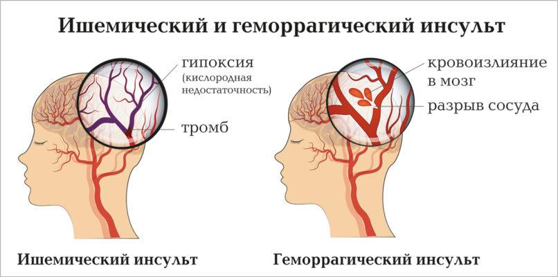 Геморрагический инсульт головного мозга: классификации, диагностика и последствия