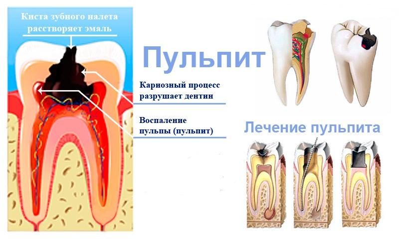Пульпа зуба это
