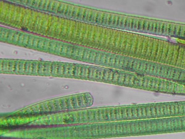 Бактерии, цианобактерии, архебактери и вирусы – в чем разница?