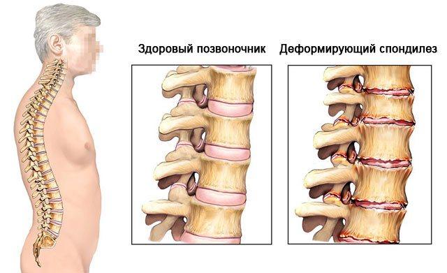Спондилез пояснично-крестцового отдела: причины и лечение
