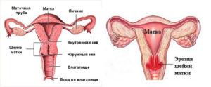 Признаки и симптомы бешенства матки. что такое бешенство матки у женщин. что происходит с нимфоманкой