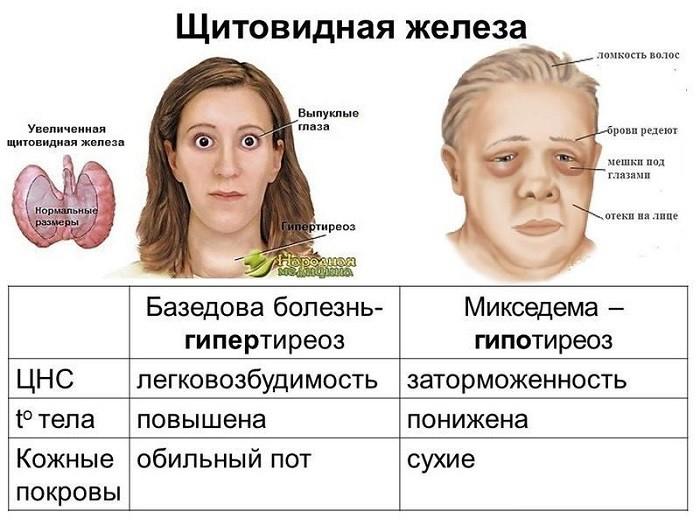 Признаки и лечение заболевания щитовидной железы