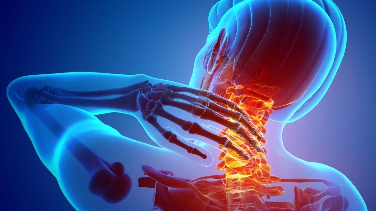 Причины и симптомы вертеброгенной цервикалгии
