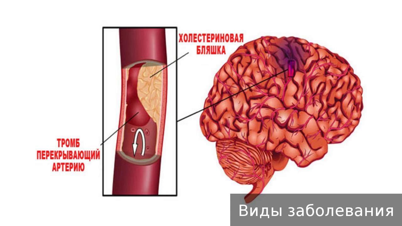Отличие инфаркта миокарда от инсульта (инфаркта мозга) – в чем разница и сходство