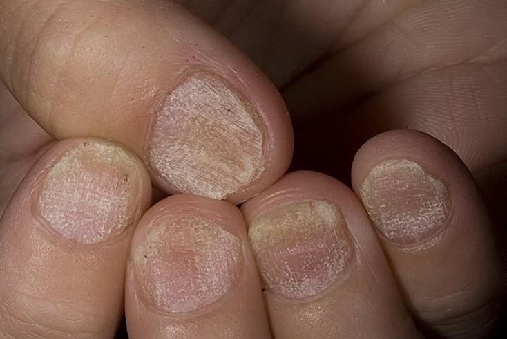 Признаки псориаза и способы его лечения