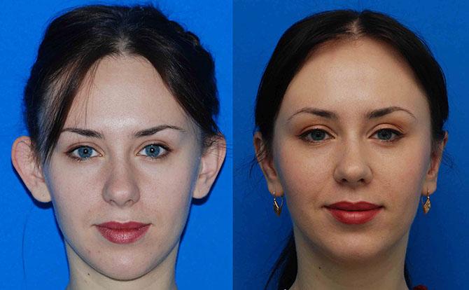 Отопластика (пластика ушей), фото до и после, пластический хирург соколов а
