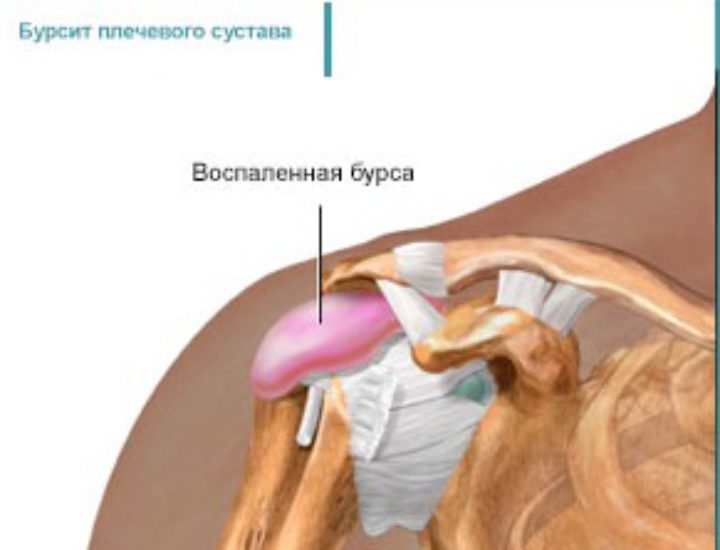 Бурсит плечевого сустава: симптомы и лечение в домашних условиях, что это такое