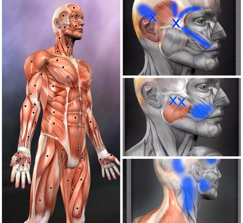 Миофасциальный болевой синдром: что это такое, симптомы и лечение лица и шейного отдела
