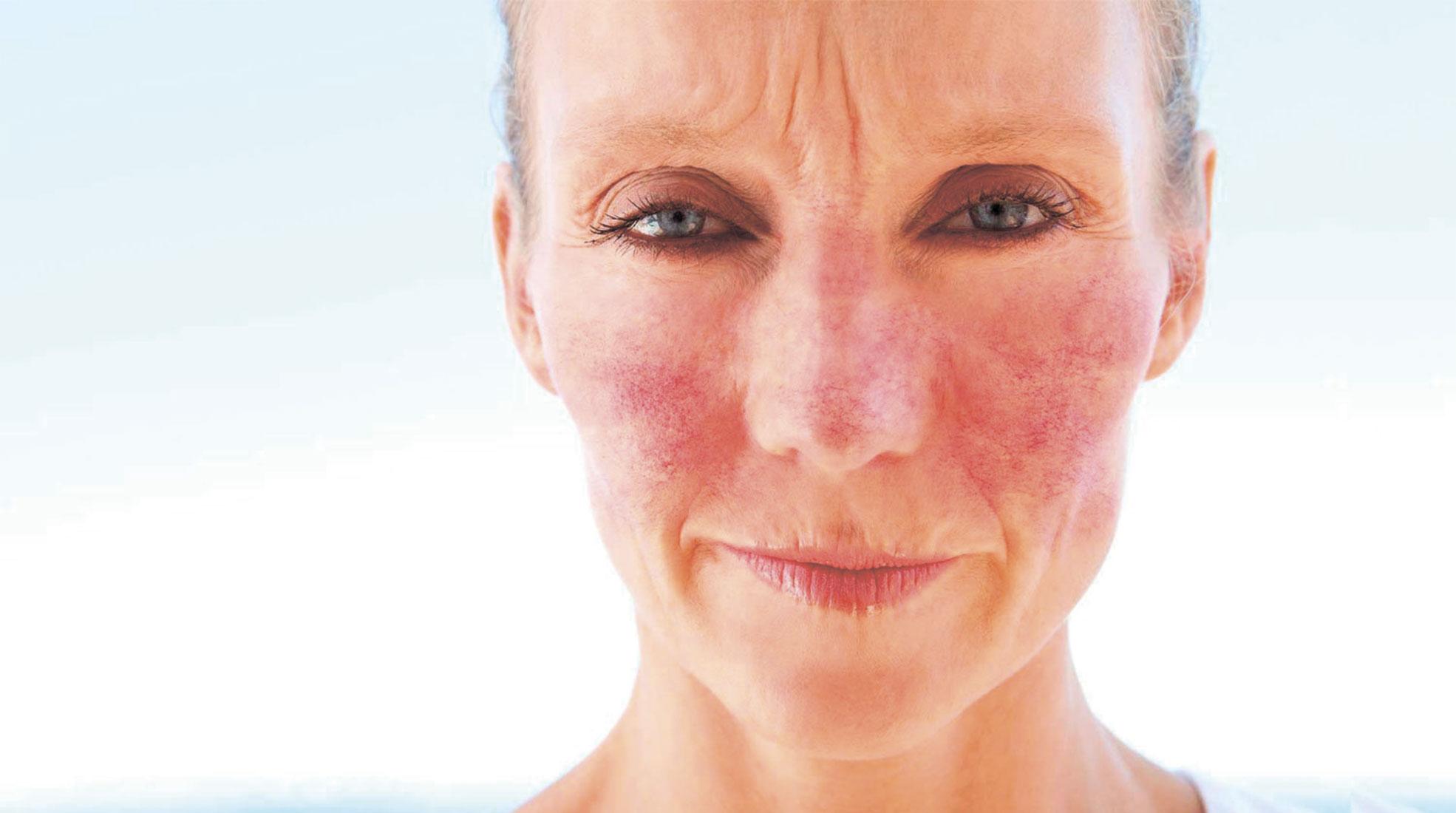 Розацеа: лечение, отзывы. розацеа на лице: лечение лазером