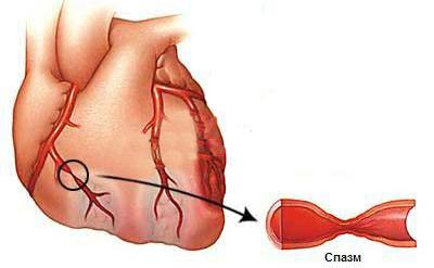 Вазоспастическая стенокардия что это такое — сердце