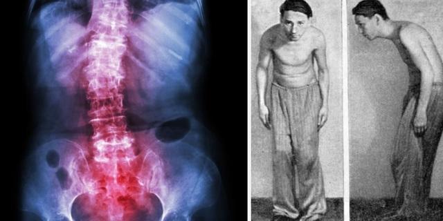 Болезнь бехтерева у мужчин, признаки, симптомы и последствия,в лечение входит: медикаментозная терапия, народные методы, массаж и другие методики описанные в статье