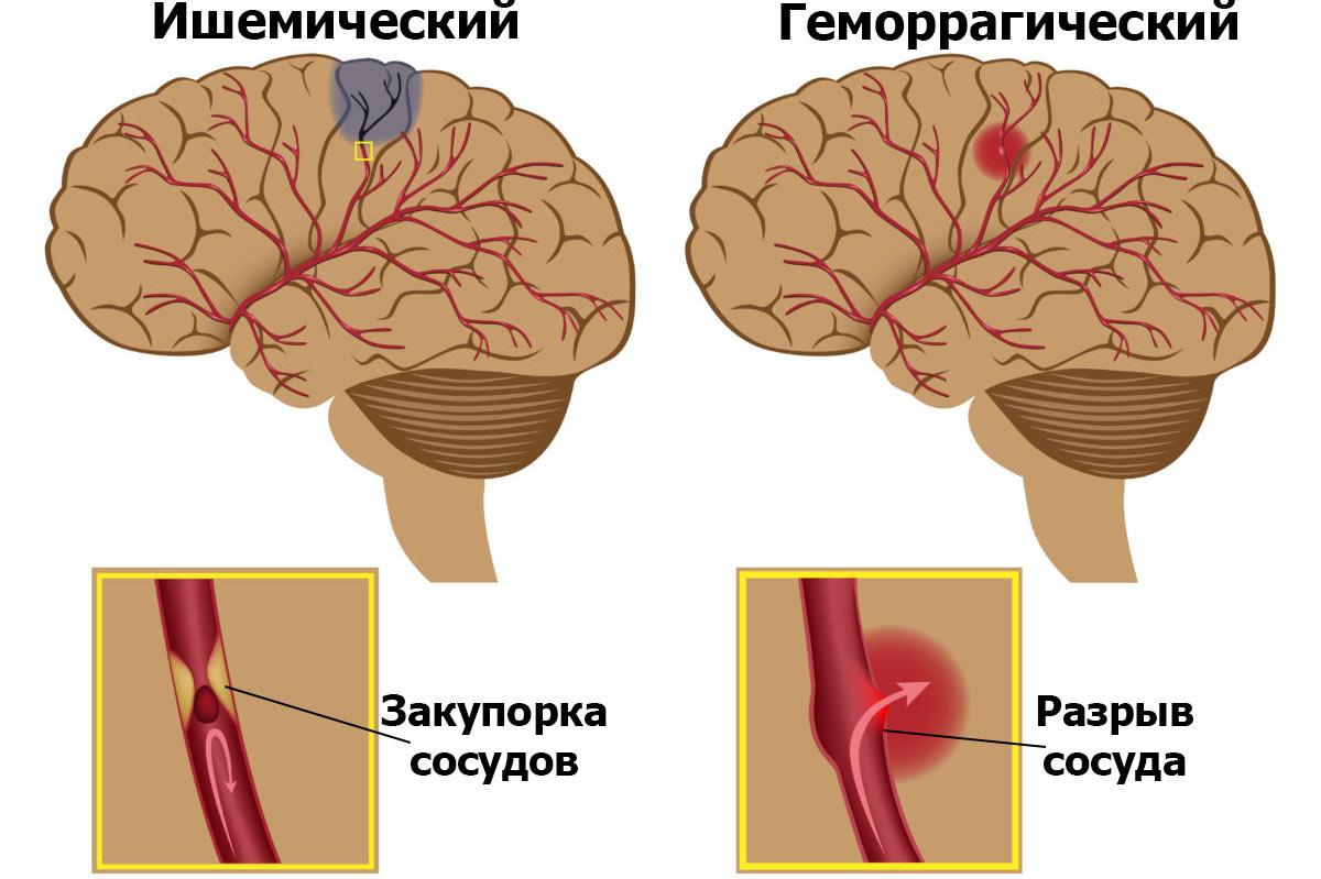 Геморрагический инсульт: особенности протекания и правила лечения заболевания