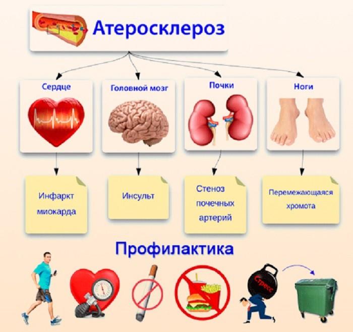 Церебральный атеросклероз - причины, симптомы и лечение