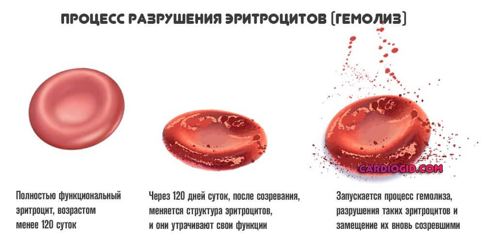 Гемолиз крови при сдаче анализов: что это такое, гемолизированная кровь