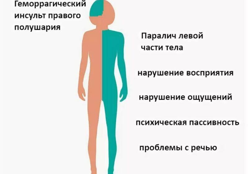 Ишемический и геморрагический инсульт: в чем разница, какой опасней? диагностика и лечение инсультов в москве