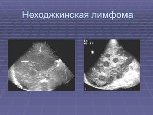 Диффузная неходжкинская лимфома: что это такое, симптомы, прогноз для жизни