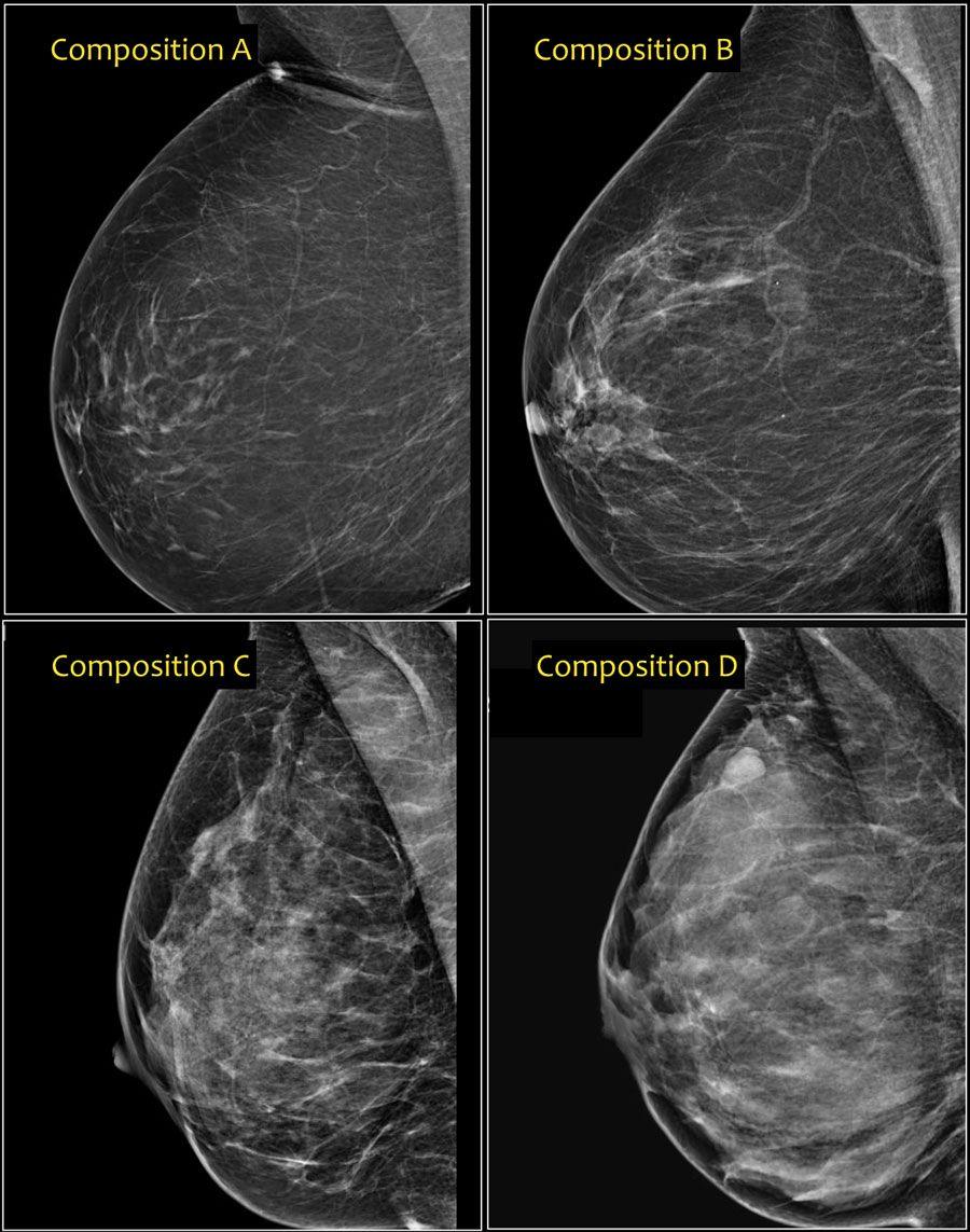 Вопросы и ответы специалистов - маммография (исследование молочной железы)