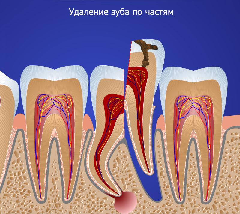 Ретинированные и дистопированные зубы: лечить или удалять.