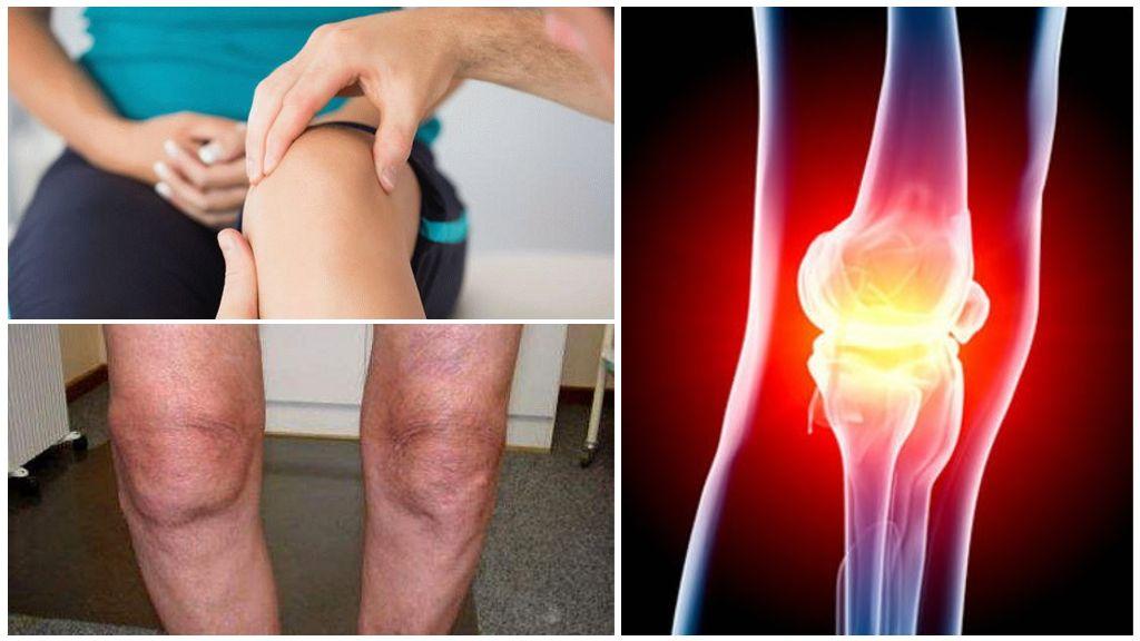 Гонартроз коленного сустава 2 степени: лечение, симптомы, признаки правосторонней и левосторонней формы