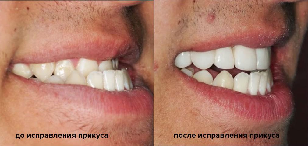 Трейнеры для выравнивания зубов: что это такое, отзывы и цена устройства