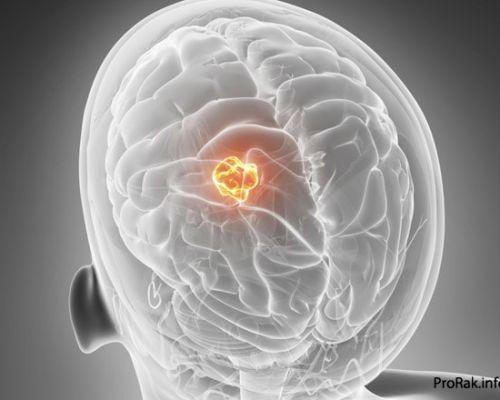 Киста шишковидной железы: причины развития, диагностика, лечение