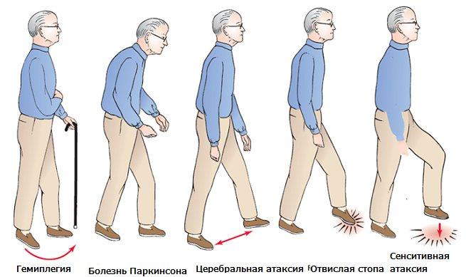 Что такое вестибуло-атактический синдром - причины и диагностика заболевания