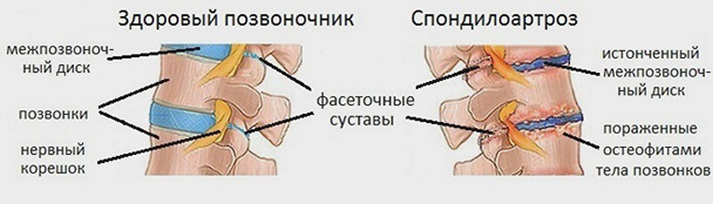 Спондилоартроз шейного отдела позвоночника: симптомы, лечение