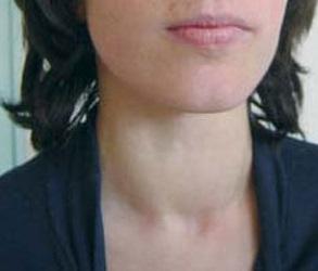 Хронический тиреоидит щитовидной железы что это такое