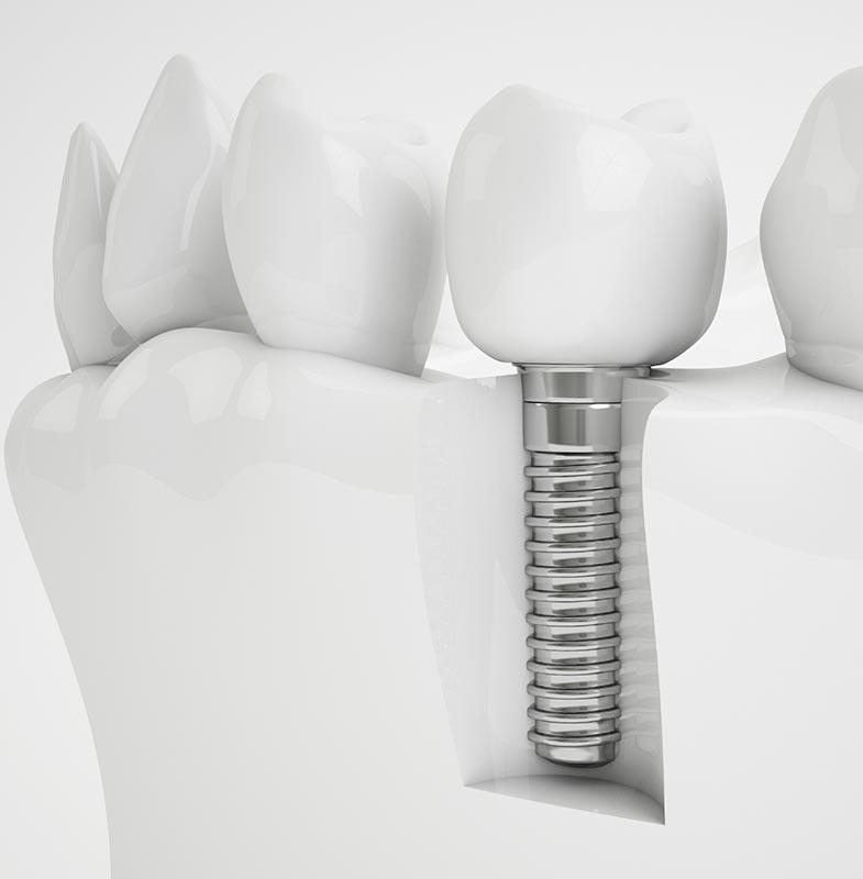 Какие импланты зубов лучше и как их правильно выбрать, цены, фото